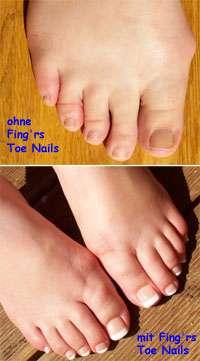 Ohne und mit Fing´rs Toe Nails