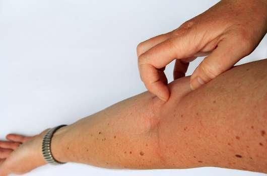 Neurodermitis – eine Winterallergie?