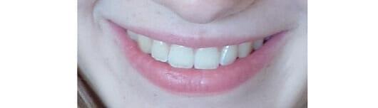Zahnseidenkampagne 500m gewachste Zahnseide