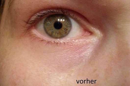 CMD Naturkosmetik Sandorini Augen Roll-On