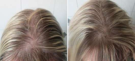 TouchBack Instant Temporary Color, Farbe: Natural Blonde