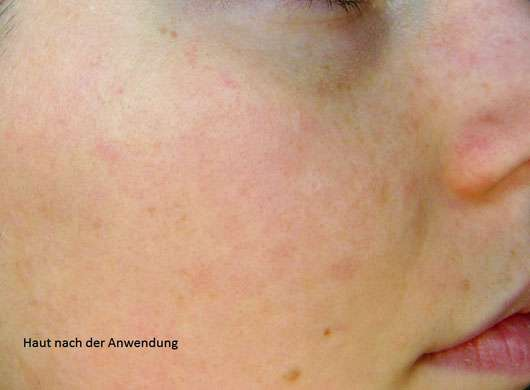 "Origins RitualiTea ""Matcha Madness"" Revitalizing Powder Face Mask - Haut nach der Anwendung"