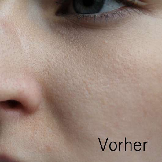 Haut vor Verwendung des Neutrogena Visibly Clear Teint Correct Hautverschönderndes Peeling