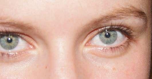 Augenpartie vor Anwendung der Rival de Loop Augen Maske Anti-Aging Pflege