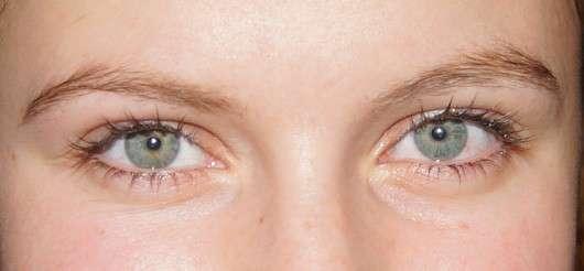 Augenpartie nach Anwendung der Rival de Loop Augen Maske Anti-Aging Pflege
