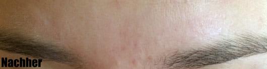 alverde Clear Anti-Pickel SOS-Serum Heilerde - Hautbild nachher