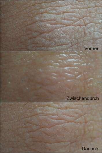 Ellenbogen vor / während und nach dem Test des Biotherm Aqua-Gelées