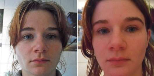 Gesicht vor/nach der Reinigung mit dem Mary Kay TimeWise 3-In-1 Cleanser