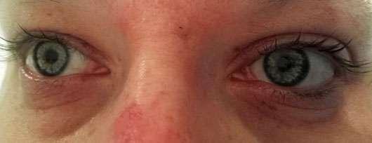 alverde Augencreme Frische mit Bachblüten - Augenpartie vor der Anwendung