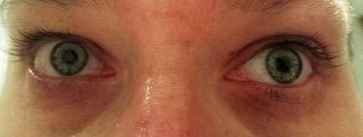 alverde Augencreme Frische mit Bachblüten - Augenpartie nach der Anwendung