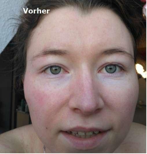 Gesicht vor der Anwendung der Kivvi cosmetics 24h Balancing Facial Cream
