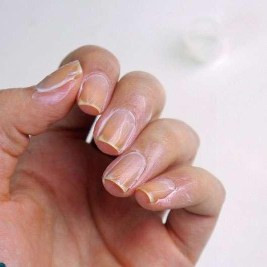 trend IT UP Enriching Nail & Cuticle Serum - eingecremete Finger