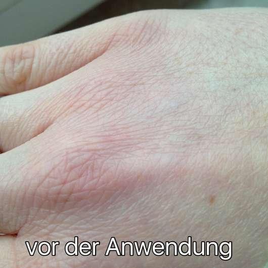 Haut vor der Verwendung des Alterra Naturkosmetik I love fruits Handpeeling Bio-Apfel (LE)