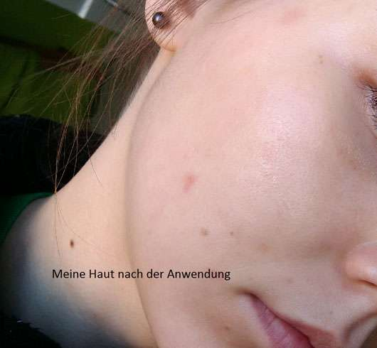 KONIVÉO Second Skin Face Mask HYDRA HEAVEN nach der Anwendung