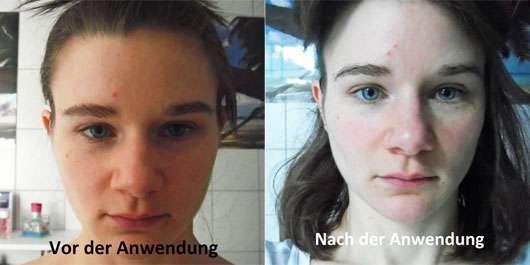 KONIVÉO Second Skin Face Mask LUXURY LIFT+ Gesicht vorher und nachher