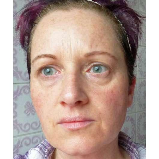 Dr. Jart+ Ceramidin Liquid - Gesicht vorher