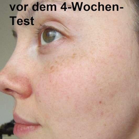 Haut vor der Verwendung der A-Derma Rheacalm Beruhigende Mizellare Reinigungsmilch