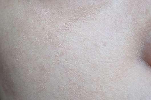 Holika Holika Moisturizing Petit BB - trockene Stellen im Gesicht