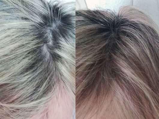 Haare vor/nach der Anwendung von L'Oréal Colorista