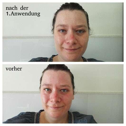 Dr. Jart+ Dermask Spot Jet Cheek & Eye Lift nach der ersten Anwendung