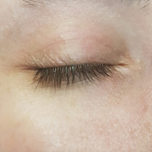 Auge nach der Anwendung des Nivea Wasserfest Augen Make-up Entferners