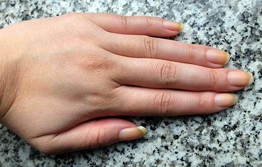 Hände vor der Verwendung der Skineco Ziegenmilchseife mit Honig