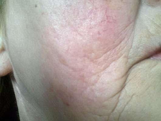SANTE Sofort Glättende Nachtcreme - Hautbild vor der Anwendung