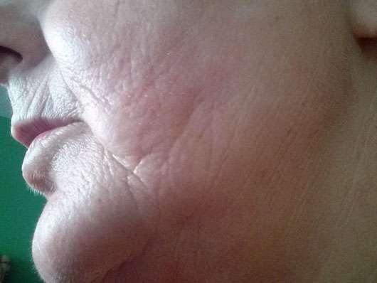 SANTE Sofort Glättende Nachtcreme - Hautbild nach der Anwendung