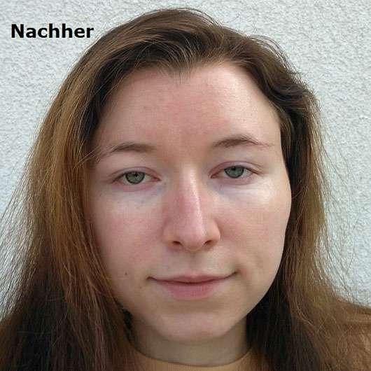 Dr. med. Christine Schrammek Sensiderm Sun Cream Sensitive SPF 50+ - Gesicht nach der Anwendung