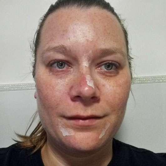SANS SOUCIS Aqua Clear Skin SOS Pickel Set (LE) - Pickeltupfer im Gesicht aufgetragen