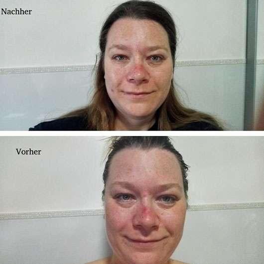 SANS SOUCIS Aqua Clear Skin SOS Pickel Set (LE) - Gesicht vorher nachher
