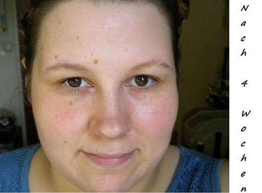 VICHY IDÉALIA Energie spendende Tagespflege (für trockene Haut) - Hautbild nach 4 Wochen