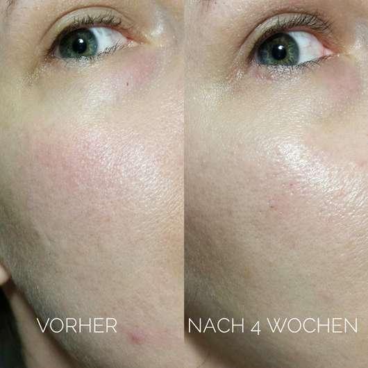 Gesicht vor/nach Anwendung des Bioré Backpulver Porenreinigendes Waschgels