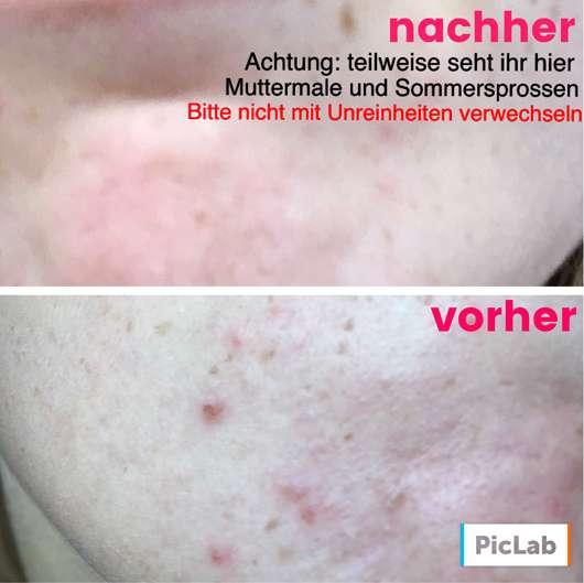 Vorher/nachher Bild der Haut
