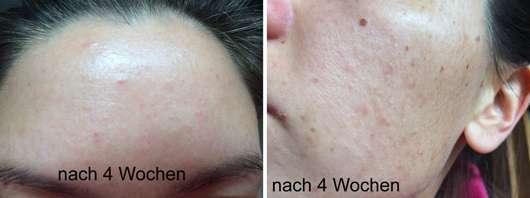 Haut nach Verwendung des Douglas Clear Focus Corrective Serum