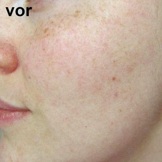M. Asam Resveratrol Premium 24H Creme - Hautbild vor der Anwendung