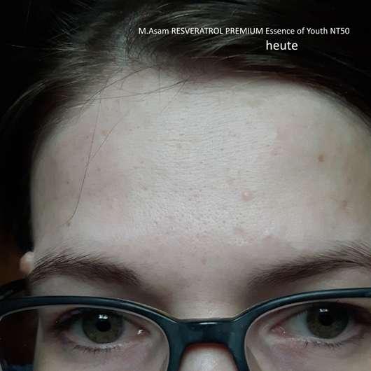 Stirnpartie nach 4-wöchigem Test der M. Asam Resveratrol Premium Essence Of Youth NT50