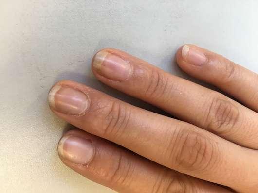 Fingernägel vor Anwendung des Misslyn Care - Care Cocktail 3-Phase Nail Oils