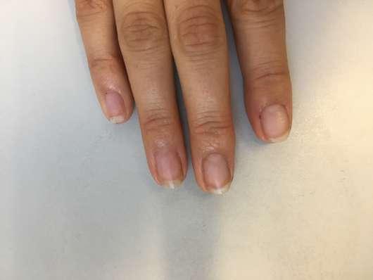 Fingernägel nach Anwendung des Misslyn Care - Care Cocktail 3-Phase Nail Oils