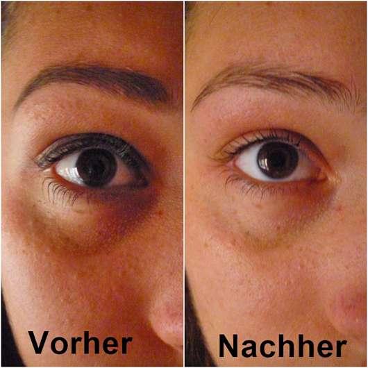Augenpartie vor/nach Anwendung der Nivea Mizellen Reinigungstücher (LE)