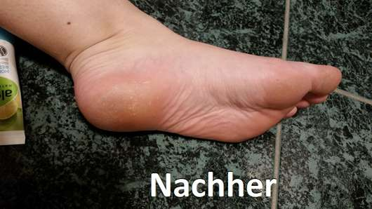 alverde Hornhaut-Reduziercreme Bio-Limette Bio-Echinacea nachher