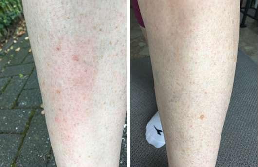Skineco Ziegenmilchseife mit Lavendel Haut vorher und nachher