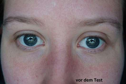 Augenpartie vor dem Test der BIO:VÉGANE Bio Grüntee Augenpflege