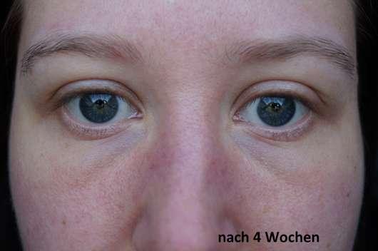 Augenpartie nach dem Test der BIO:VÉGANE Bio Grüntee Augenpflege