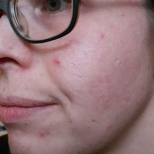 Douglas Clear Focus Purifying Scrub Haut nach vier Wochen