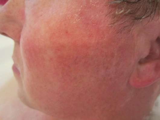 Gesicht zu Testbeginn - LR ALOE VIA Aloe Vera After Shave Balsam