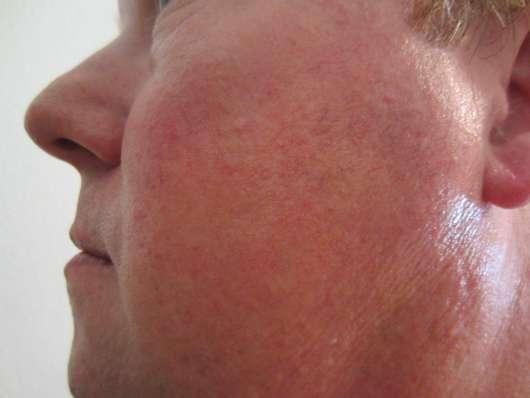 Gesicht nach 4-wöchiger Anwendung des LR ALOE VIA Aloe Vera After Shave Balsam