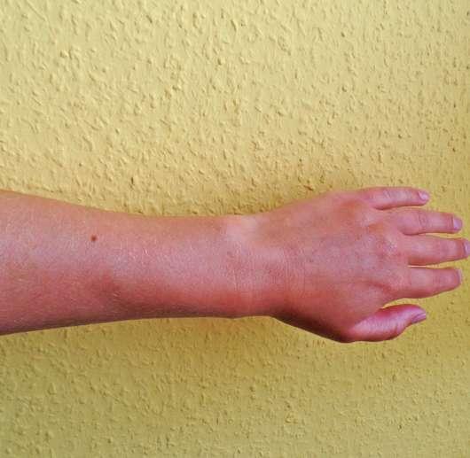 Unterarm nach dem Auftrag des Oceanwell Relaxing body oils
