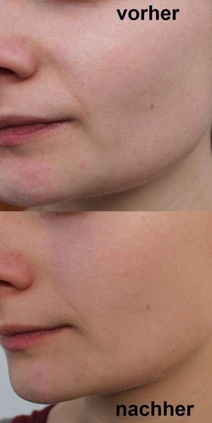 vorher/nachher Bilder Haut - PIXI Glow O2 Oxygen Mask