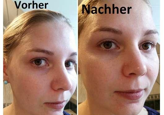 Gesichtshaut zu Testbeginn und nach dem Test des PIXI Peel & Polish Gesichtspeelings